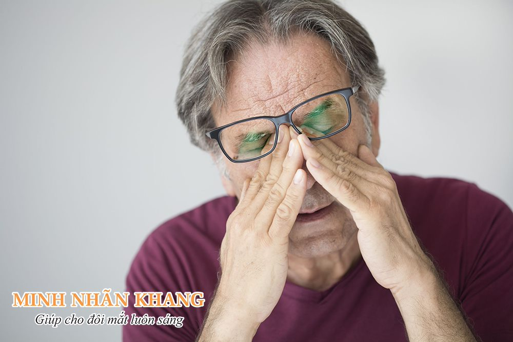 Khô mắt rất dễ dẫn đến viêm giác mạc, viêm kết mạc, viêm bờ mi gây tổn hại thị lực nghiêm trọng